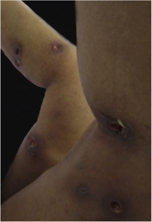 Múltiplas úlceras de PG em locais de injeções para escleroterapia de varizes.