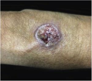 Lesões de leishmaniose cutânea podem se assemelhar às lesões clássicas de PG.