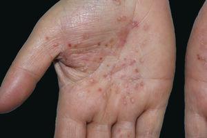 Pústulas localizadas em pele normal e eritematosa das palmas das mãos, com pigmentação marrom.