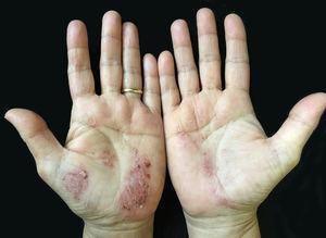 Descamação e pigmentação marrom em pele eritematosa das palmas das mãos.