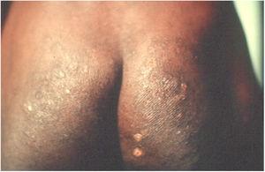 A, Oncocercose. Intenso prurido, presença de liquenificação, exulcerações e hiperpigmentação. Paciente da Clínica de Doenças Infecciosas de Ibadan, Nigeria. (Arquivo pessoal: Prof. Dr. Sinésio Talhari).