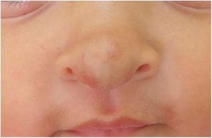 Após o tratamento com propranolol oral, paciente com 9 meses.