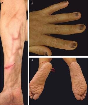 Diferentes padrões de hiperpigmentação: (A)hiperpigmentação supravenosa após infusão de quimioterapia em acesso periférico (fluoracila); (B) pigmentação da lâmina ungueal (daunorrubicina); (C) lentiginoses acrais (doxorrubicina).