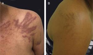Dermatite flagelada associada ao tratamento com bleomicina: (A) placas lineares eritematosas pruriginosas, (B) seguidas de pigmentação linear.