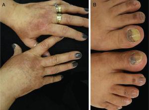Síndrome PATEO (eritema tenar e periarticular, e onicólise): paciente tratada com docetaxel, apresentando (A) lesões eritematosas com distribuição peculiar sobre o dorso das mãos e (B) alterações ungueais associadas – hemorragia subungueal e onicólise.
