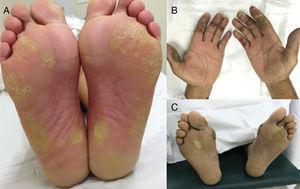 Reação mão‐pé associada a agentes antiangiogênicos (VEGFRi): (A) lesões hiperqueratósicas (sorafenibe) e (B) lesões bolhosas (axitinibe) em áreas de pressão e fricção.