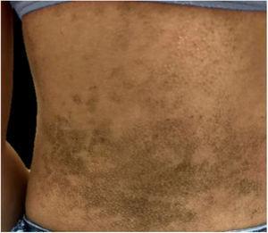 Placas acastanhadas hiperceratóticas de aspecto pontuado acometem o dorso.