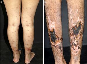 Diferentes lesões observadas em pacientes com vasculites de médios vasos: (a) Nódulos subcutâneos, úlceras e cicatrizes atróficas com bordas hiperpigmentadas em membros inferiores na arterite cutânea, (b) Extensas úlceras com áreas de necrose e cicatrizes atróficas residuais nos membros inferiores em paciente com poliangeíte microscópica.