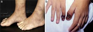 Diferentes lesões observadas em pacientes com vasculites de médios vasos: (a) Livedo racemosa em membros inferiores, inclusive o dorso dos pés em paciente com arterite cutânea, (b) Necroses digitais em doente com vasculite ANCA positiva – granulomatose com poliangeíte.