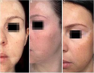 (A e B), antes do tratamento, manchas hipocrómicas por toda a face. (C),Após dois anos de tratamento, vemos completa repigmentação das manchas em fronte e perilabial, além de melhoria no restante da face.