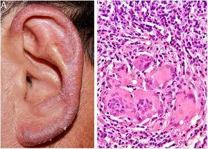 (A e B) lesão eritematoescamosa, infiltrativa, na orelha esquerda. Histopatológico: infiltrado inflamatório granulomatoso com focos supurativos(Hematoxilina & eosina, 400×).