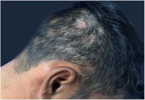 Áreas de alopecia não cicatricial no couro cabeludo.