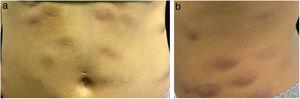 (A e B) Nódulos eritêmato‐infiltrados no abdome.