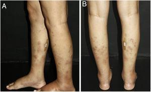 Vasculite nodular: as regiões posterolaterais das pernas estão acometidas por nódulos e placas de coloração violácea. Um curativo foi colocado no local onde uma biópsia de pele havia sido colhida alguns dias antes.