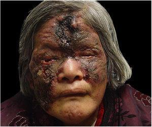 Antes do tratamento. Paciente do sexo feminino de 67 anos apresentou uma úlcera com secreção purulenta central amarela e uma crosta dura, seca e escura na testa e bochecha direita, circundada por uma borda elevada sem inclinação e um anel inflamatório. Uma placa irregular, confluente, infiltrada e vermelho‐clara com um limite claro acometia o nariz, bochecha esquerda e pálpebras. Uma grande crosta necrótica de coloração vermelho‐acastanhada cobria a maior parte das lesões.