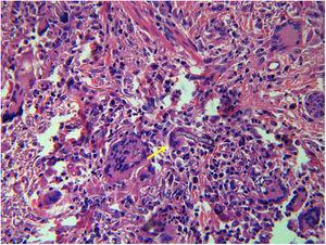 Hifas não septadas em forma de fita, características de um fungo da ordem Mucorales, circundadas por células gigantes multinucleadas (seta amarela; Hematoxilina & eosina, 400×).