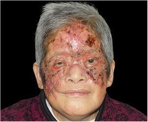 Após o tratamento, a úlcera superficial tornou‐se mais seca, com a formação de novo tecido de granulação; a crosta necrótica caiu e as secreções purulentas desapareceram.