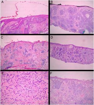 Subtipos histológicos de CBC. (A) superficial; (B) nodular; (C) micronodular; (D) infiltrativo; (E) esclerodermiforme; (F) metatípico (Hematoxilina & eosina, 40×).