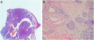 Upstaging. (A) biópsia pré‐operatória: CBC nodular; (B) cirurgia de Mohs: CBC micronodular (Hematoxilina & eosina: A 10×, B 40×).