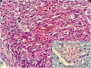 O estudo histopatológico do fragmento revelou proliferação fusocelular com vasos alongados e ramificados, hemorragias, mitoses frequentes e poucas atipias. Com maior detalhe pode‐se ver lacunas com hemácias extravasadas, poucas células atípicas, mas várias células mitóticas. O estudo imuno‐histoquímico em maior detalhe.