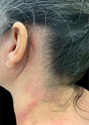 Paciente com dermatite alérgica de contato a componentes dos xampus envolvendo regiões pré‐auricular, retroauricular e cervical lateral (áreas por onde escorre o produto após o enxague).