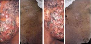 Paciente de 22 anos com acne conglobata apenas na face havia 15 meses. Tratado anteriormente com antibióticos orais e produtos tópicos (não soube informar nomes), sem melhora. Foi introduzida isotretinoína 20 mg/dia (0,3 mg/kg/dia) e prednisona 40, 30, 20 e 10 mg/dia a cada sete dias. A duração do tratamento, sempre com a mesma dose diária, foi de 18 meses (160 mg/kg), até resolução completa das lesões. Tratamento de manutenção com peróxido de benzoíla 5% por 12 meses. Não houve recidiva.