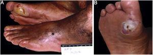 Paciente diabético. (A), Cicatriz de úlcera arterial (*) no pé esquerdo e úlcera neuropática no primeiro metatarsiano direito; (B), Calosidade periférica desbastada.