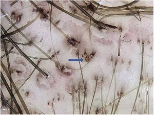 Pigmentação marrom na orla do óstio folicular pela antralina (seta azul); diferenciar do ponto preto, que fica no centro do óstio.