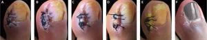 Processo de cicatrização pós‐operatório. A, 3° dia. B, 4° dia. C, 5° dia. D, 6° dia. E, 14° dia. F, 4ª semana.