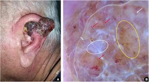 (A), Tumoração exofítica eritemato‐violácea acometendo hélice da orelha esquerda, com presença de pápulas satélites confluentes. (B), Dermatoscopia sugestiva de melanoma nodular: véu branco‐azulado (círculo branco); padrão vascular atípico, com vasos lineares irregulares (setas vermelhas) e glóbulos vermelhos leitosos (seta branca); pontos e glóbulos irregulares de distribuição assimétrica (círculo amarelo).