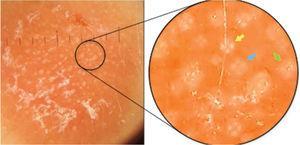 Dermatoscopia de contato com luz polarizada, sem imersão, com grupamentos de rosetas de cerca de 0,2mm, orientadas no mesmo sentido, entremeadas por white dots. No detalhe, nota‐se uma roseta bem formada (seta amarela), um esboço de roseta (seta azul) e um white dot (seta verde).