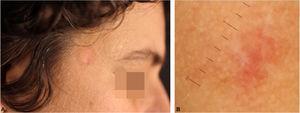 (A), Aspecto clínico da lesão residual após três semanas de uso de clobetasol sobre a lesão. (B), Aspecto à dermatoscopia de contato sem imersão após três semanas.
