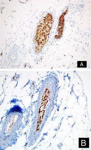 As células tumorais foram positivas para CD20 (A: DAB, 200×) e MUM‐1 (B: DAB, 200×).