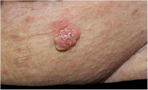 Placa verrucosas eritematosas com estruturas amareladas em região pubiana.