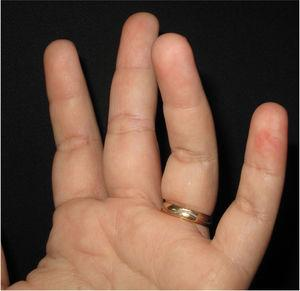 Máculas eritematosas nas polpas digitais dos terceiro, quarto e quinto quirodáctilos da mão esquerda.