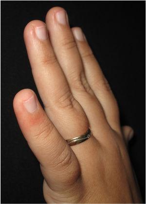 Mácula eritematosa na face dorsal do quinto quirodáctilo da mão esquerda.
