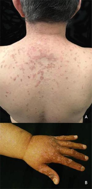 (A), Epidermodisplasia verruciforme, placas eritematosas e/ou acastanhadas que lembram lesões de pitiríase versicolor e ceratose seborreica no tronco. (B), Síndrome de WILD, numerosas pápulas eritematosas achatadas confluentes formando placas no dorso da mão e antebraço associadas à linfedema do membro superior. Arquivo: Serviço de Dermatologia do HC‐UFMG/EBSERH.