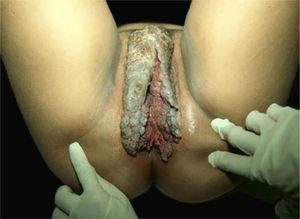 Condiloma acuminado gigante, extensa tumoração com áreas vegetantes e verrucosas. Arquivo Pessoal: Dra. Ana Tereza Orsi.