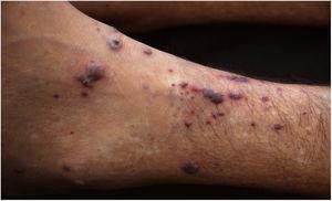 Púrpuras palpáveis e vesículas necróticas na extremidade do membro inferior esquerdo.
