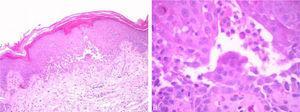 (AeB), Acantólise suprabasal com espongiose focal e numerosas células disceratóticas (Hematoxilina & eosina, 40×e 100×, respetivamente).