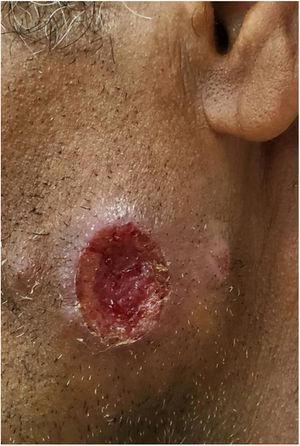 Leishmaniose tegumentar americana. Úlcera na face, com borda eritematosa, infiltrada, e fundo granuloso, em agricultor do vale do rio Tietê.