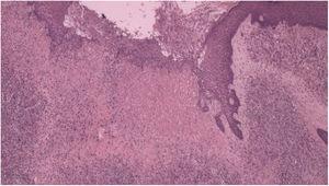 Histopatologia com fibroplasia, vasos neoformados associados a infiltrado linfocítico inflamatório com exsudato de neutrófilos (Hematoxilina & eosina, 40×).