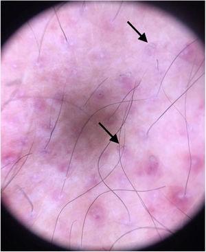 Dermatoscopia: pelos em saca‐rolha.