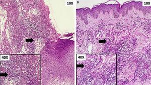 (A), Úlcera com infiltrado neutrofílico abundante na derme papilar e reticular. Detalhe em maior aumento: detalhe do componente celular (seta). (B), Infiltrado inflamatório perivascular denso de neutrófilos. Detalhe em maior aumento: detalhe do componente celular (seta).