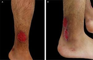 (A e B), Úlceras superficiais, de formato arredondado, bem definidas, bordas elevadas e de coloração violácea em ambas as pernas.