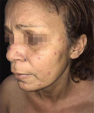 Paracoccidioidomicose e transplante hepático. Lesões acneiformes e pápulas eritematosas, algumas com centro exulcerado, disseminadas na face.