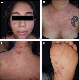 (A‐C) Pápulas, placas e nódulos eritematosos na face, tórax e região dorsal. (D) Pápulas eritematosas e pústulas na região plantar.