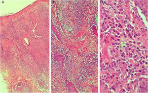 (A e B) Dermatite granulomatosa não tuberculoide superficial e profunda (A, Hematoxilina & eosina, 40×; B, Hematoxilina & eosina, 100×). (C) A ponta de seta mostra a presença de plasmócitos (Hematoxilina & eosina, 400×).