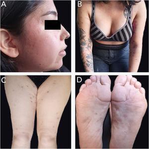 (A) Cicatrizes atróficas na face. (B‐D) Cicatrizes eritematosas de aspecto anetodérmico nos braços, coxas e pés.