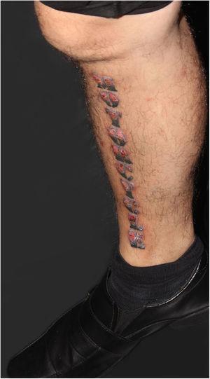 Aspecto clínico da tatuagem aproximadamente dois meses após o procedimento: infiltração e inflamação da área de pigmento vermelho.